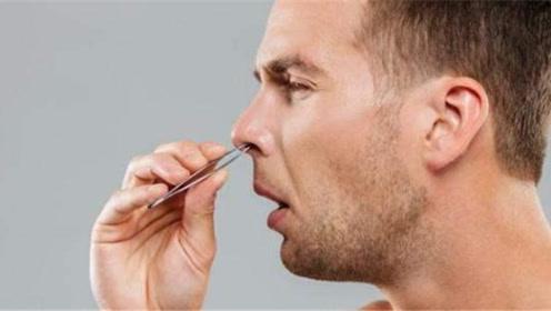 """经常""""拔鼻毛"""",对身体到底有什么影响?医生:劝你做到手下留情"""