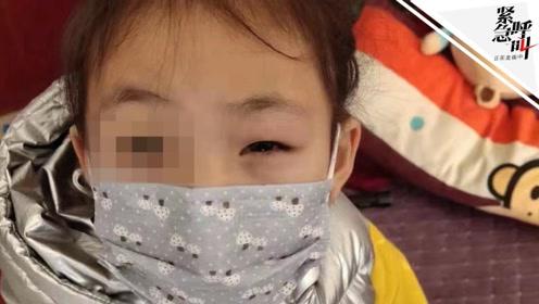 紧急呼叫丨河南女童母亲称孩子眼里又掉纸片 医生:轻微发炎未见异物