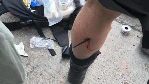 港警驱散理大附近暴徒遭弓箭等致命武器攻击 一警员中箭已送医治疗