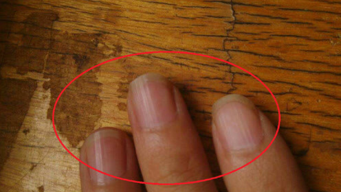 为什么指甲上会出现,一道道的竖纹,这些竖纹代表着什么?