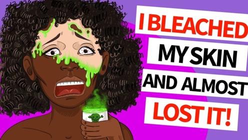 黑皮肤女孩遭家人嫌弃,自卑下用大量美白乳毁容,竟意外得知一惊天秘密