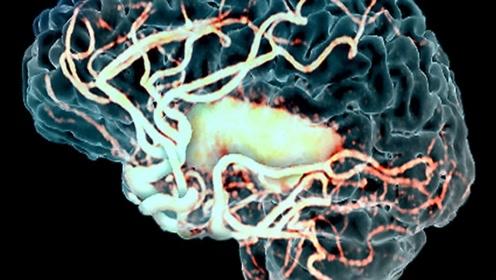 为何脑梗患者变多了?4种食物要远离