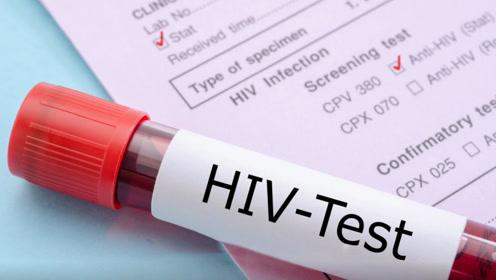 艾滋病的传播途径只有这3种,第1种才是最易感染的,很多人不重视
