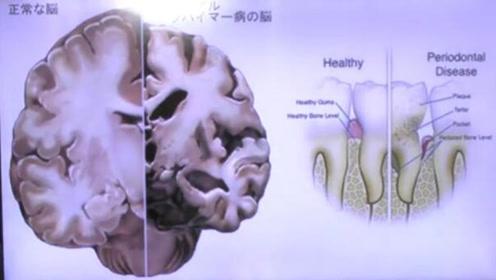 口腔保健很重要!牙周炎可能导致阿尔茨海默病