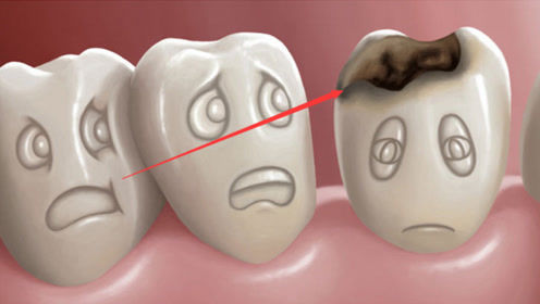 """蛀牙里真的有""""虫子""""吗?一段3D动画告诉你答案,看完恍然大悟"""