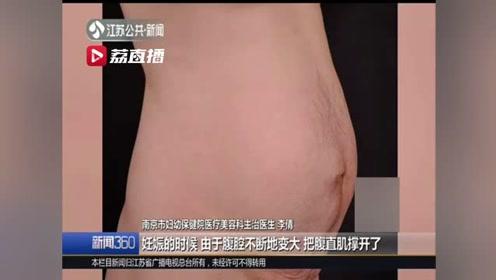 生娃三年后仍像孕妇?二胎妈妈坚持健身肚子竟越减越大