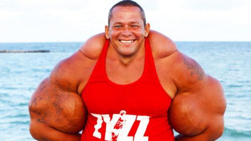 比巨臂哥还猛!男子手臂围度达74厘米,里面竟全是酒精和煤油!
