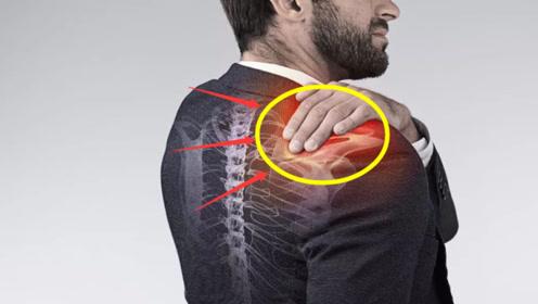 """体内有癌,肩膀先知,肩膀若出现""""1个特征"""",可能是癌症找上门了"""