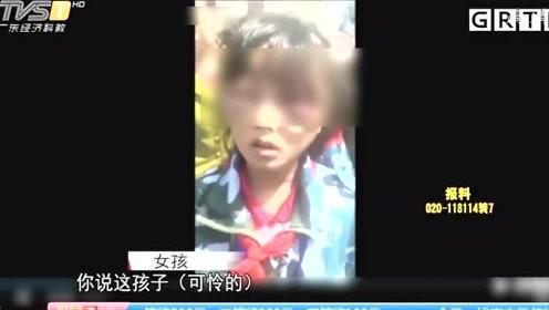 """遭继母打成""""熊猫眼""""的女孩:生母已过世,身体有多处外伤"""