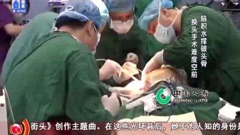 生命缘:头骨全部剥落,手术4小时意外不断,小女孩命悬一线!