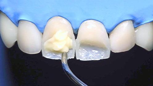 人类有多会享受,看看这3种发明,第2个补牙看着好高级