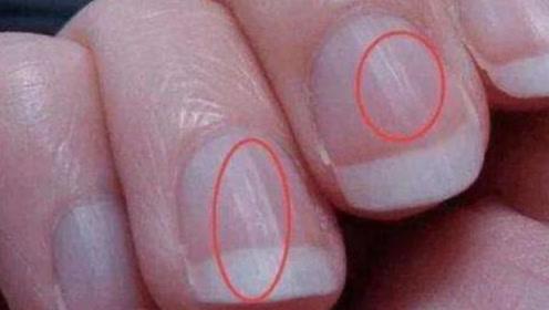 """为什么指甲上会长""""竖纹""""?医生说出了真相:暗示这3种疾病"""