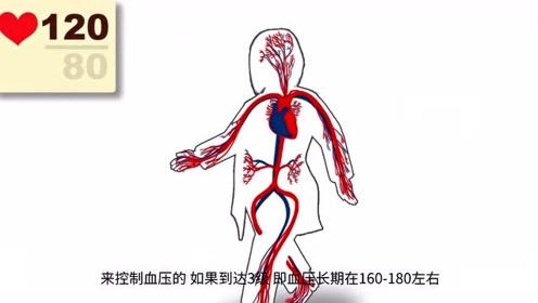 患了高血压,拒绝服用降压药会有什么后果吗?