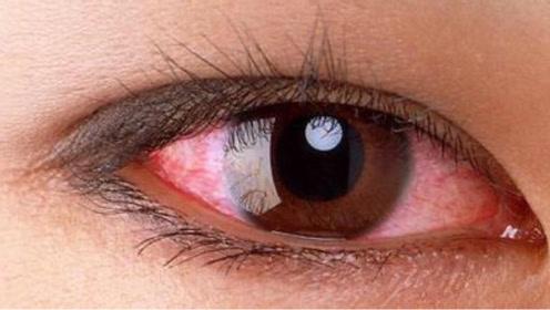 眼睛红红的,很难受,当心是患上了红眼病!