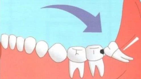 智齿为什么会引起牙痛,一定要拔掉吗?