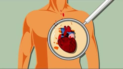 健康科普:浅谈心肌梗塞