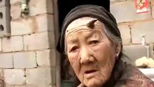 百岁老人头上长出8厘米牛角 医生的化验结果让人傻眼