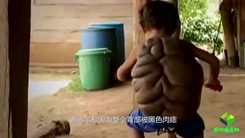 """小男孩患怪病,背部竟长出""""乌龟壳"""",被称为现实版的""""龟仙人"""""""
