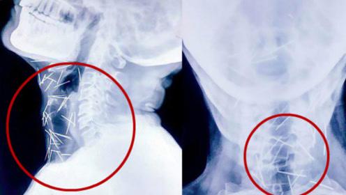 数百根针在喉咙停留6个月,医生询问男子,男子的回答逆天了
