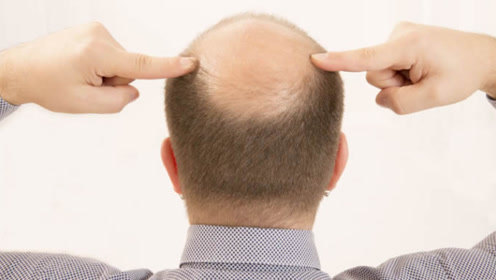 理发师一个不小心,将顾客头发给剪秃了,竟然用胸毛给他……