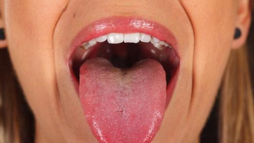 """医生忠告:舌头出现这8个变化,暗示你生""""大病""""了!赶紧治疗"""