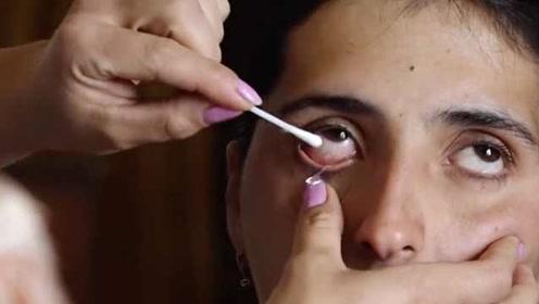 女子患怪病,流出的眼泪是水晶:每天50多颗