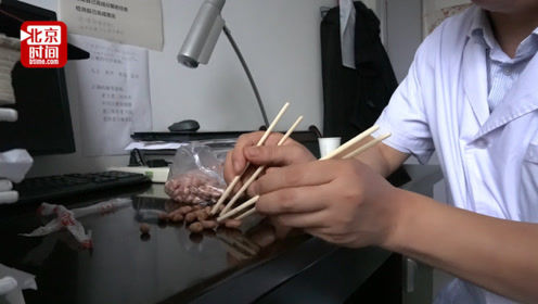 外科医生夹花生为练双手缝针 缝合断指最快40分钟