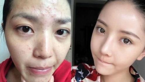 爱化妆与爱素颜的女生,20年后谁的皮肤更好?答案可能让你意外