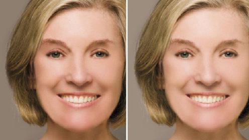 经常打玻尿酸的女人,10年后脸部变成这样,看完你还敢整容吗?