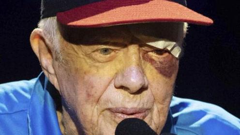 95岁美国前总统卡特家中跌倒入院 本月第2次,上次被缝14针