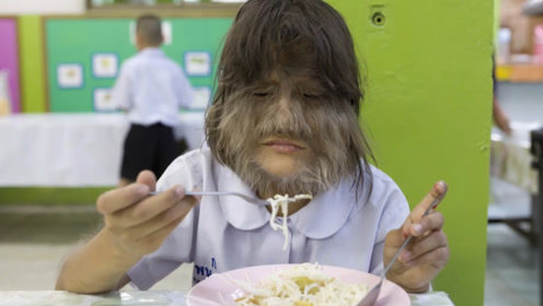 世界毛发最长的女孩,全身长满毛发,剃光后的样子惊艳众人!