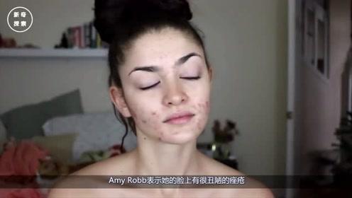 爱尔兰女子满脸痤疮,用BB霜堪比刷墙,化妆变芭比娃娃骗男友5年