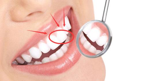 """想要一口""""好牙"""",除了正确""""刷牙"""",还要少吃3种""""损牙食物"""""""