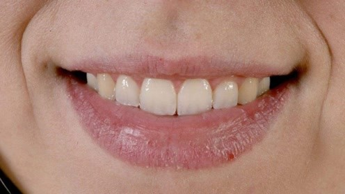 嘴唇干裂脱皮不用怕,用点它抹一抹,成本低效果比润唇膏还好