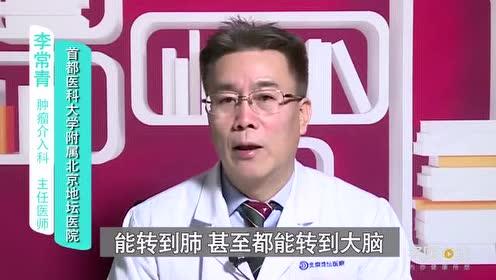 晚期肝癌的治疗目的是什么