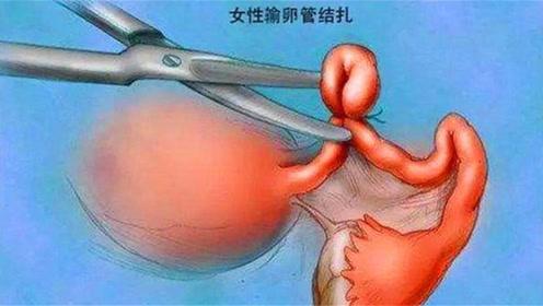 女性做结扎手术,原来对身体会有这么多影响,很多人做了就后悔了