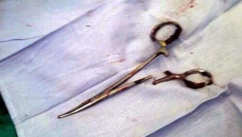 越南男子腹痛难忍,医院检查发现18年前手术剪刀藏在腹中