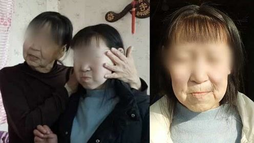 15岁少女患怪病面容如6旬老太,常被中年人喊大姐不愿上学