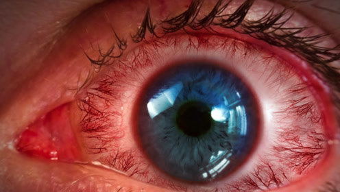 医生提醒:2个穴位捏一下,缓解老花眼和近视眼,人人都可以做
