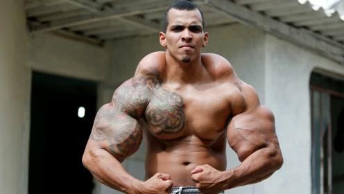 奇闻!巴西小伙拥有76厘米臂围,妻子却为此要和他离婚