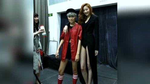 20岁女孩腿长竟一米二,一直没办法穿裙子,令她非常烦恼