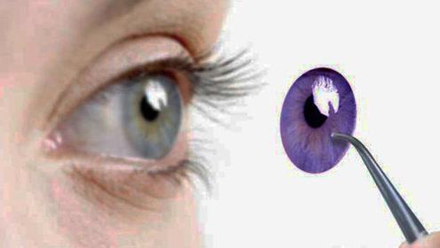 世界首例3D打印人工眼角膜 6分钟就能完成