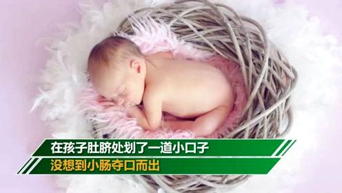 1月大婴儿肚脐外鼓 父亲竟划开放气致休克