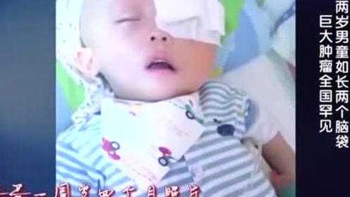 脑袋长巨大肿瘤将眼睛挤出眼眶,男孩竟才两岁,太让人心疼了