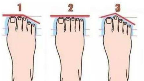二脚趾长最有福,脚趾平齐最苦命,你属于哪种?