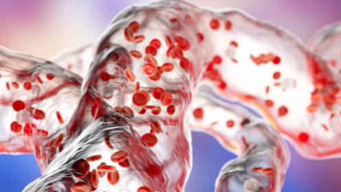 降压药会到底会不会伤肝肾?高血压的4个谣言