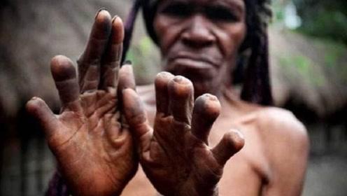 印尼神秘土著部落,亲人去世女性必须断指哀悼!网友:不可理喻