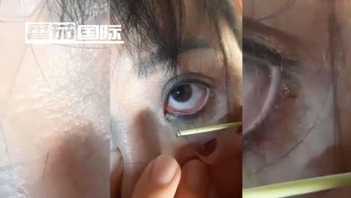 几名女子眼痛难忍 医生抽出数十5厘米长恐怖虫子