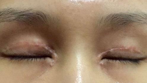 年轻时候做了双眼皮手术的人,老了之后眼皮会怎样?你还敢做吗?