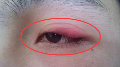 肾癌早期不疼不痒,只要眼皮里出现这种东西,癌症已经找上你